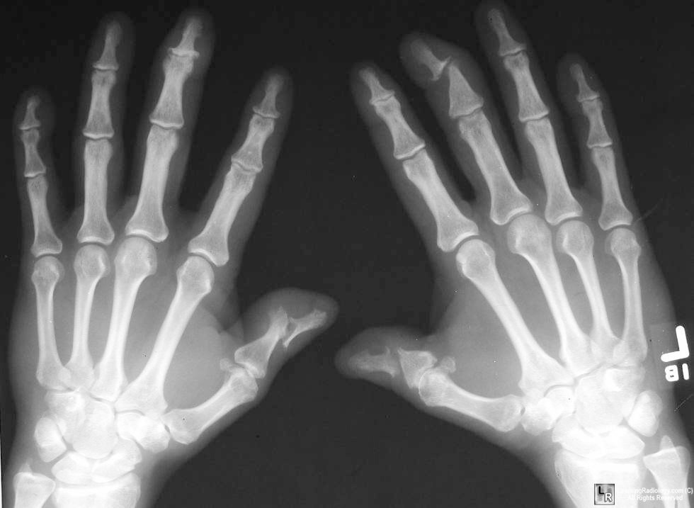 psoriatic arthritis, hands