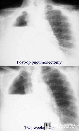 Learningradiology Post Pneumonectomy Lung Resection
