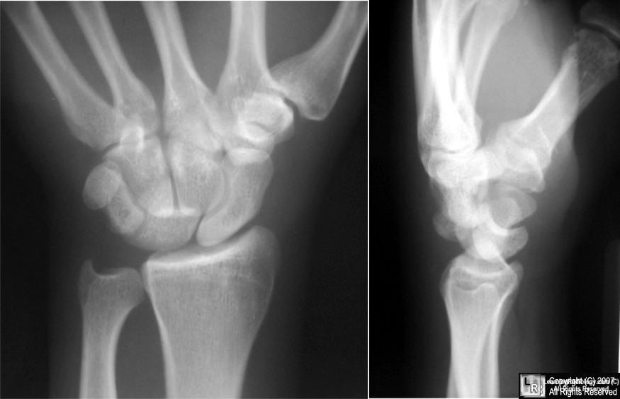 Perilunate Dislocation Lunate Dislocation