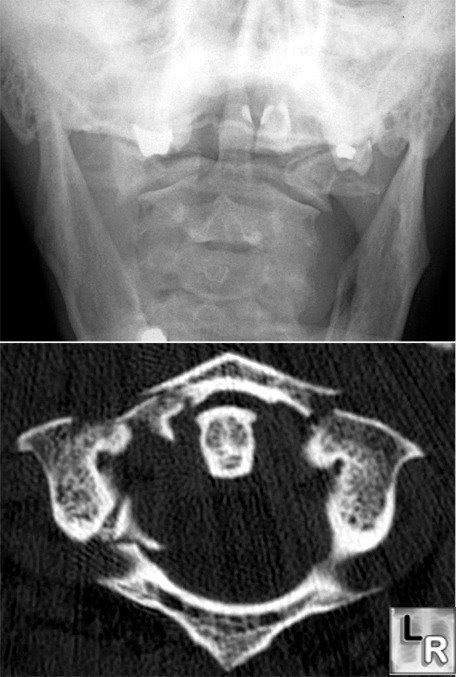 Jefferson fracture xray