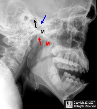 Dislocated mandible, image