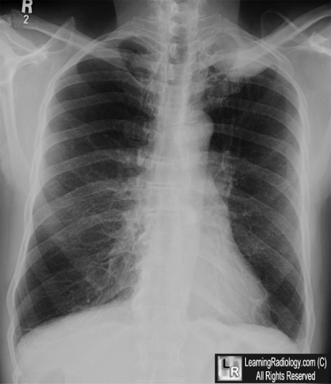 LearningRadiology - pancoast, tumor, superior, sulcus, lung ...
