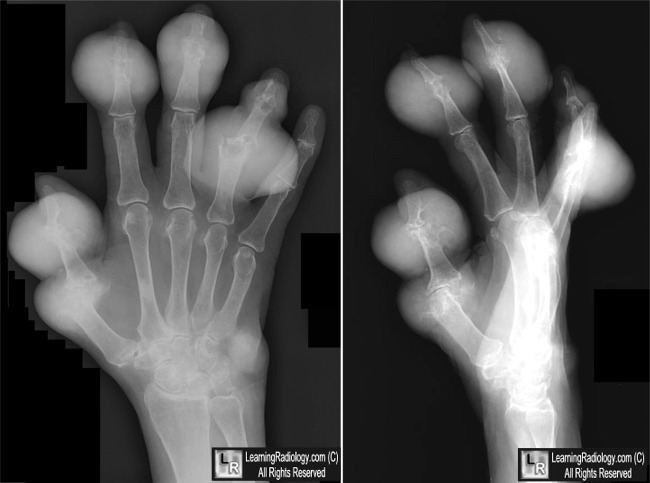 LearningRadiology - gout  hand  gouty  arthritis  finger  xray  x-ray