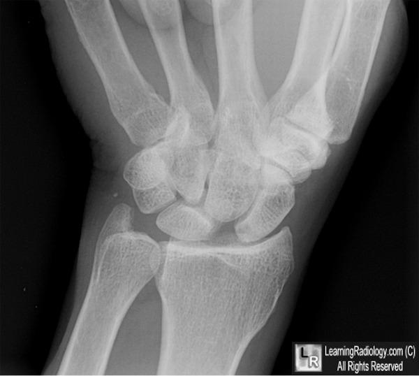 Scapholunate dissociation   Radiology Reference Article ...