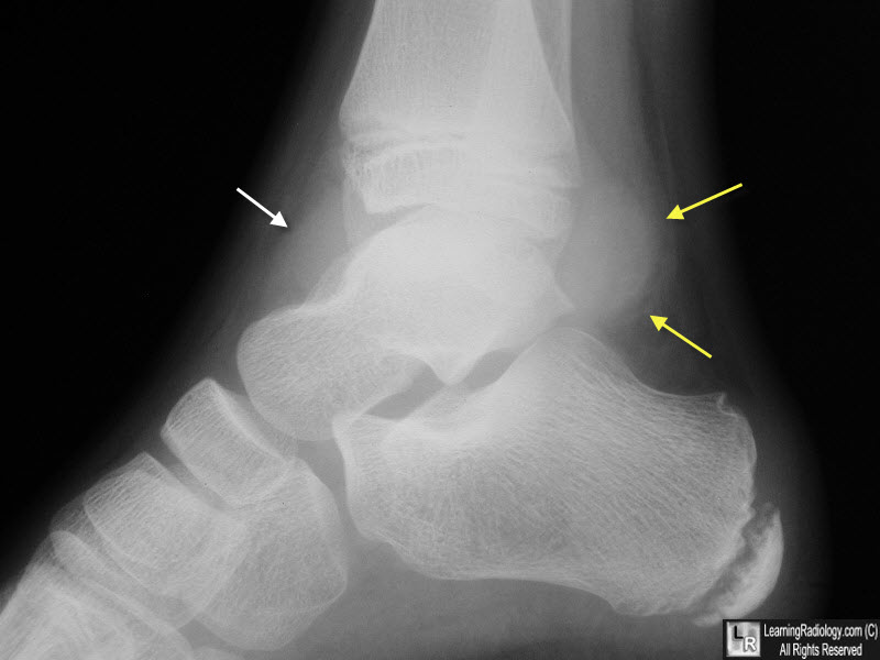 Ankle Joint Effusion.