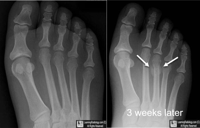 Broken Foot Bone X Ray | www.pixshark.com - Images ...