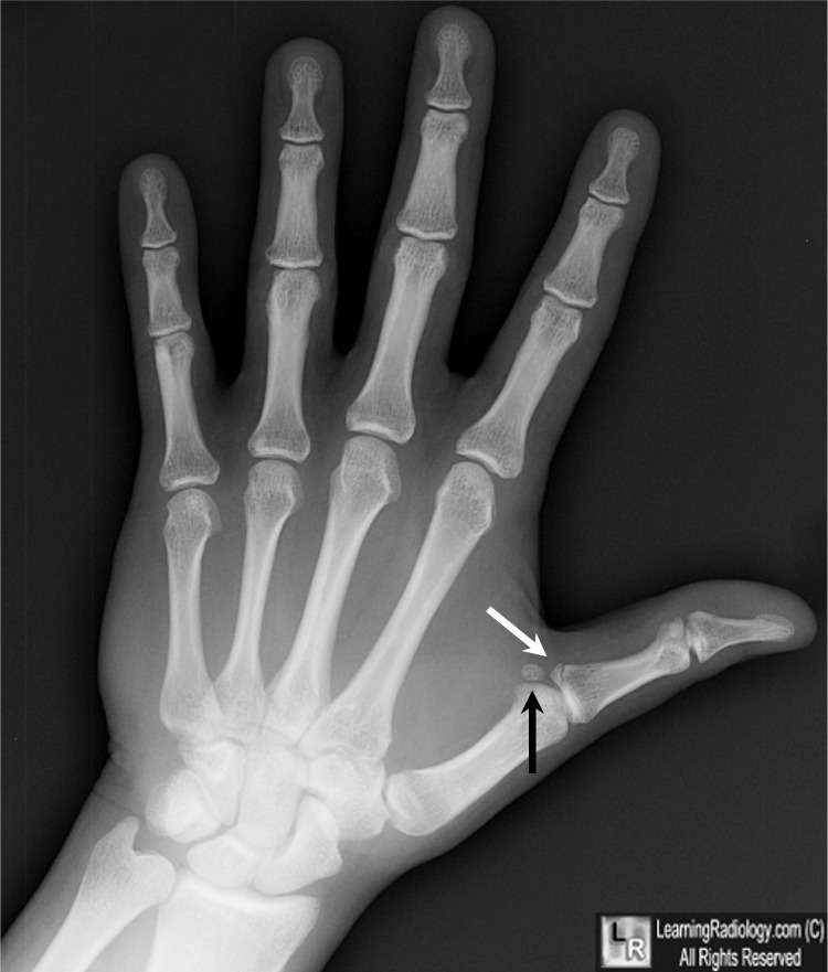 LearningRadiology - Gamekeeper's Thumb, Skier's Thumb, Break ...