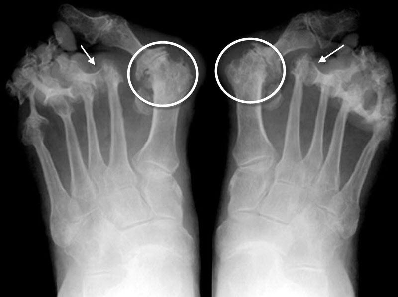 Rheumatoid arthritis radiology foot - tarczi.hu