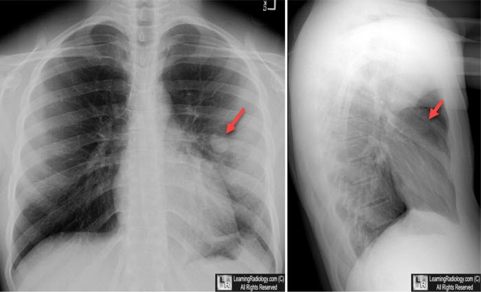 Learning Radiology - pulmonary, laceration, traumatic, pneumatocele