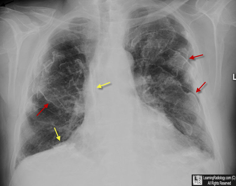 Learning Radiology - Asbestos-Related Pleural Disease ...