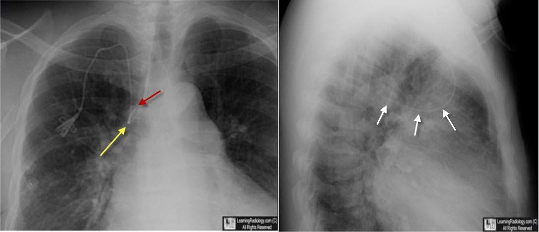 Learning Radiology - Central, Venous, Catheter, Azygos, Vein