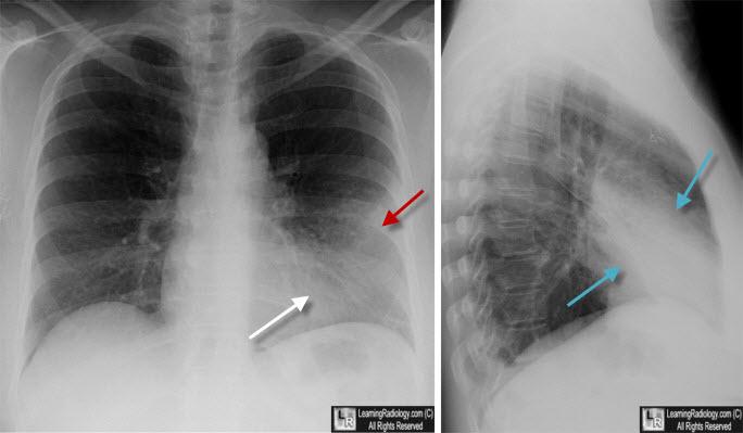 learning radiology lingula pneumonia lingular left upper lobe