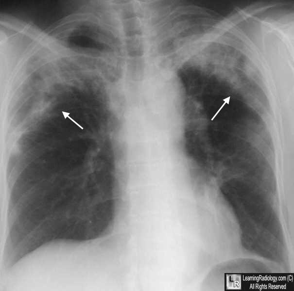 Loffler (Loeffler) Syndrome