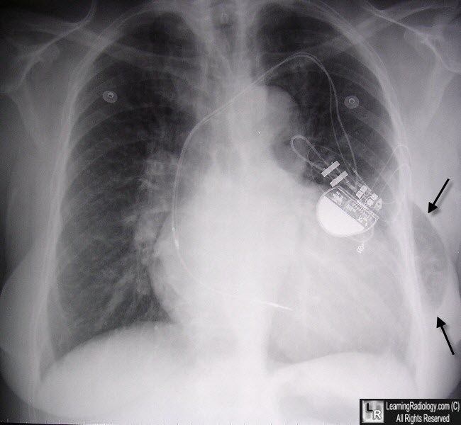 Lung Hernia