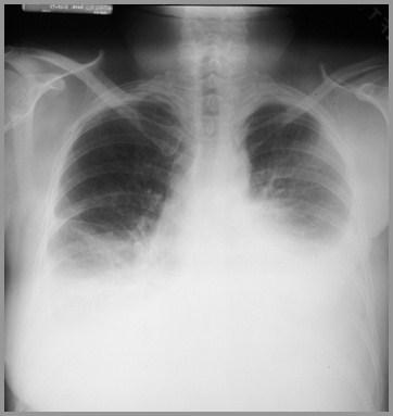 pleural effusion-2012, Skeleton