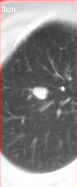 Pulmonary nodule size evaluation with chest tomosynthesis