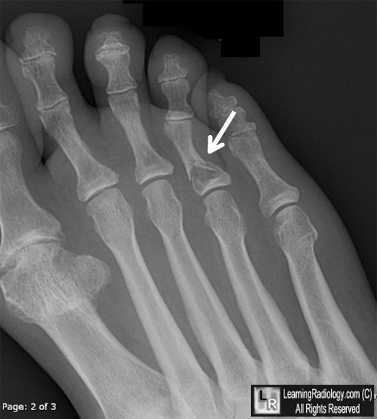 Enchondroma with pathologic fracture
