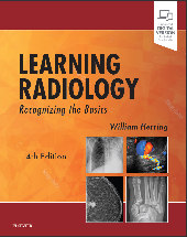 Buy Learning Radiology on Amazon