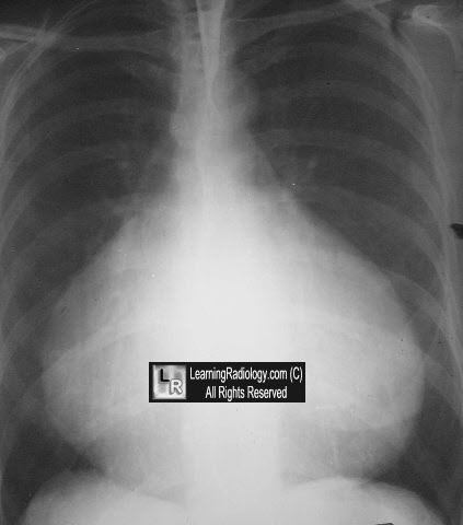 Welcome To Learningradiology Radiology Radiologic