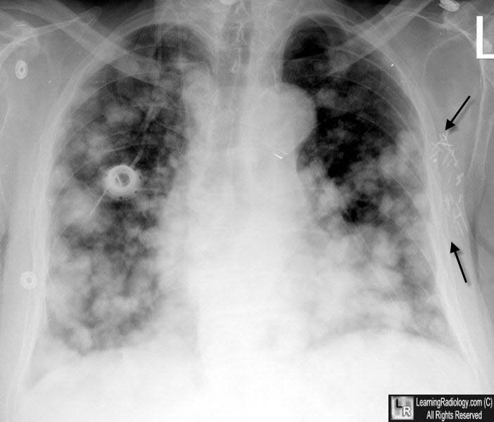 Learningradiology Pulmonary Lung Metastases Metastasis